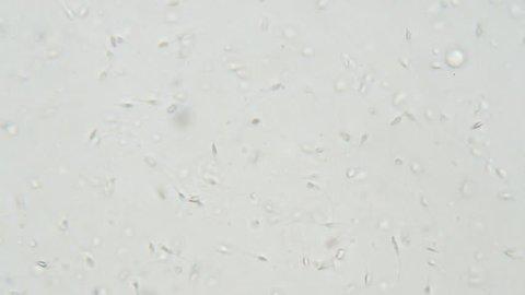 Human spermatozoa under microscope. Testing in laboratory