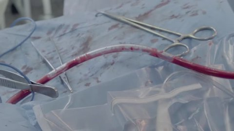 Drainage of blood flow during the operation. Close-up. Slow motion.