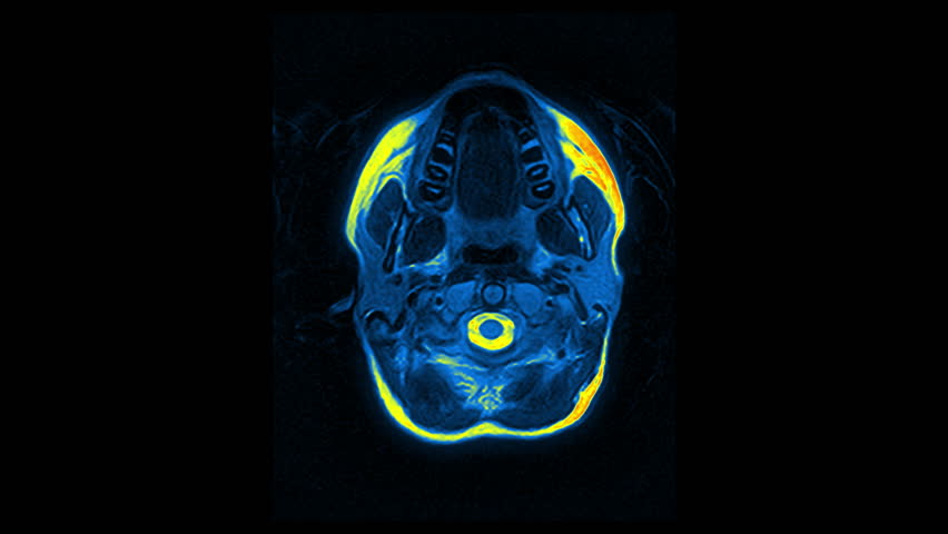 Computed medical tomography MRI upscaled scan of healthy young female head. Top view. Discrete slices. Red, yellow, blue on black background. (av43564c)