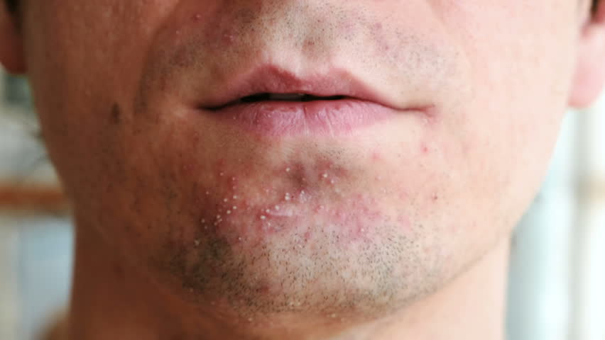 Skin irritation after shaving. Pimples on the man's chin, closeup chin and lips. | Shutterstock HD Video #1008607024