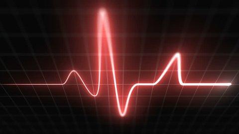Stylized EKG Fast, Red. Heart rate monitor / electrocardiogram (EKG or ECG) loop beeping at 120 beats per minute. Shallow depth of field, LCD pixels, 60fps.