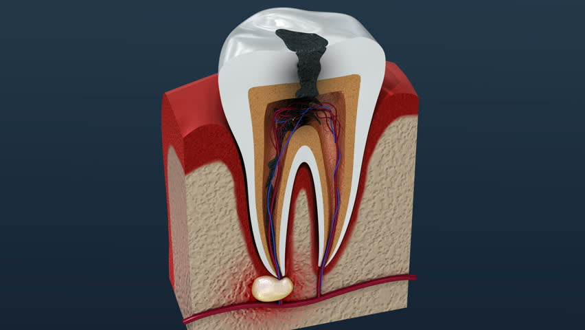 Root canal treatment process. 3D Animation. | Shutterstock HD Video #1010471024