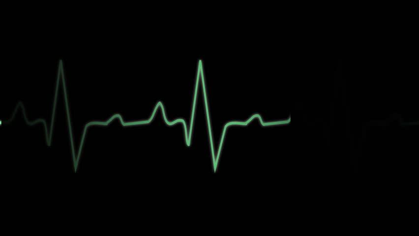 EKG ECG monitoring cardiogram, normal sinus rhythm, normal heart wave
