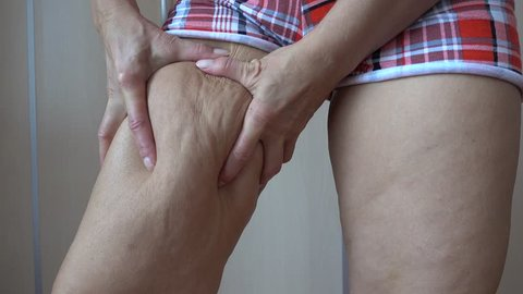 4K Cellulite on thigh showed by squeezing