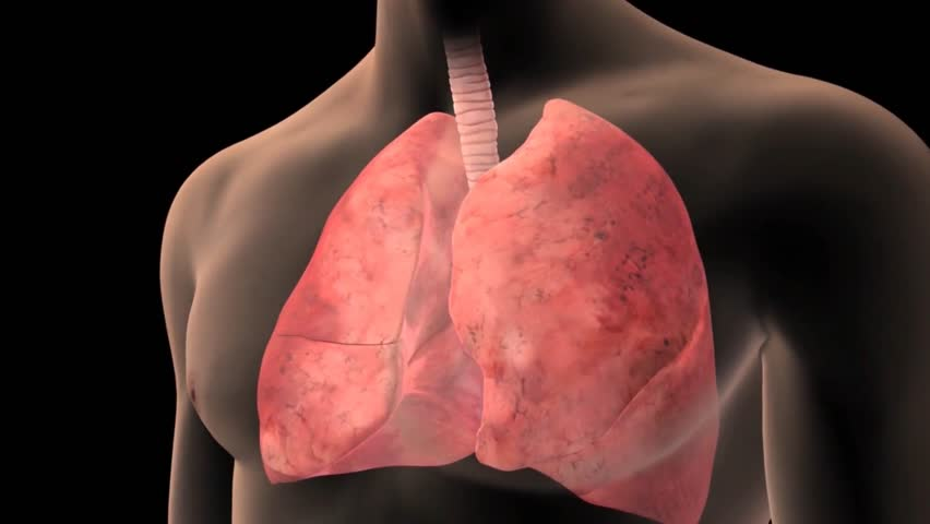 3D visualisation of a thrombo-embolism at the level of a pulmonary alveolus with