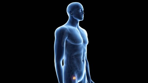 medically accurate 3d animation of prostate cancer