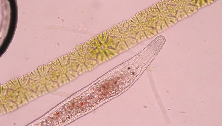 Platyhelminthes under microscope.