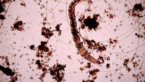 Annelida.Tubiflex tubiflex under the microscope view.