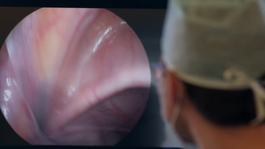 surgeon on the monitor performs an endoscopic operation