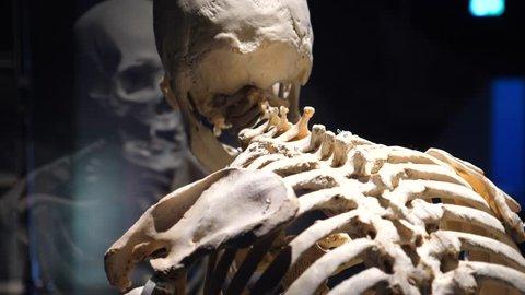 Human Skeleton With Spinal Disease: Arthritis, Osteoarthrosis, Osteoporosis, Degenerative Disc Disease, Curvature, Scoliosis