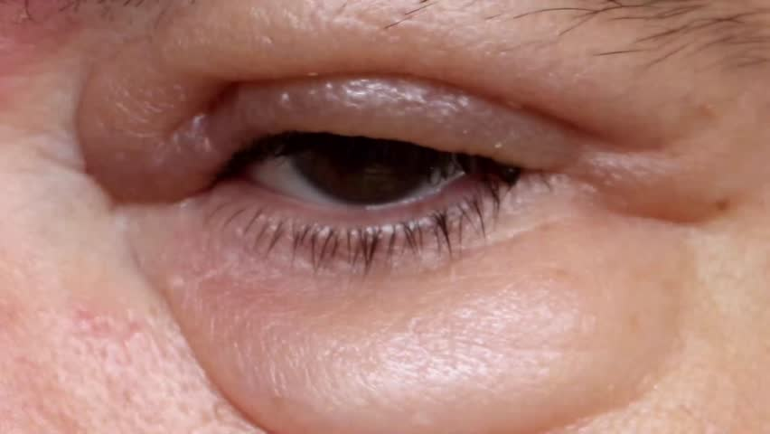 7b559e42e33 The Sick Eye with Swelling. Stock Footage Video (100% Royalty-free ...