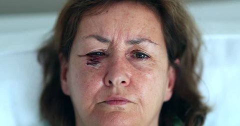 Older woman with bruised scarred eye face opening eyes after surgery