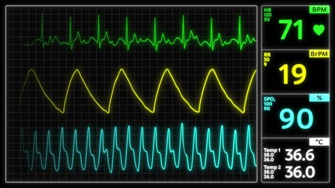 Monitoring of patient's condition, vital signs on ICU monitor in hospital. Medical ICU monitor with patient's vital signs 4k