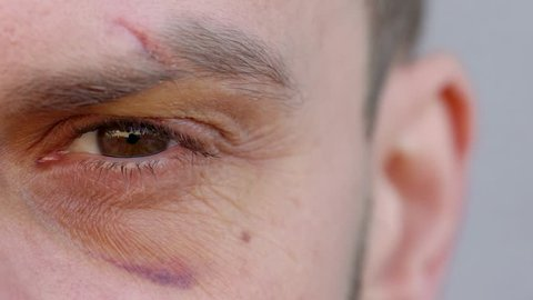 Close-up of handsome male eye is looking at the camera - the eyebrow is cut and the bruise under the eye