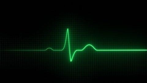 Cardiogram. Electro cardiogram