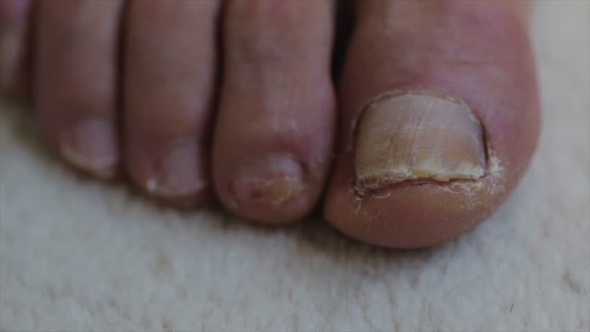 Feet close up with toenail damage on big toe of an older man. Medical treatment for bacterial foot fungus and nail bed trauma. | Shutterstock HD Video #1026872174