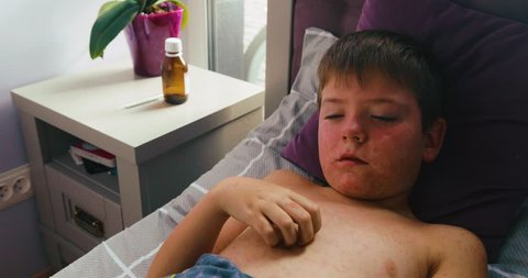 Viral disease. Measles rash. Child with viral infection measles lies in the bed and scratches himself