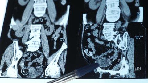 Kidney stone or ureter. Urogenital disease in the picture mri