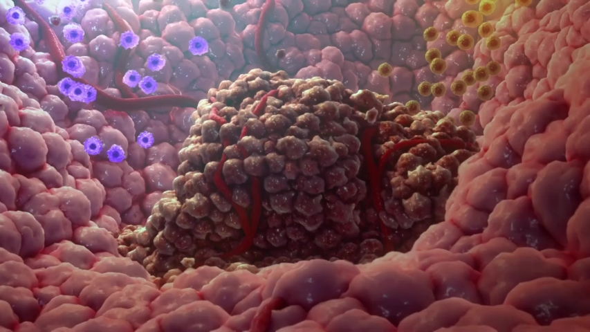 The T cells kill cancer cells. They additionally destroy the tumour blood vessel system, thus impeding the supply of nutrients to the tumour.