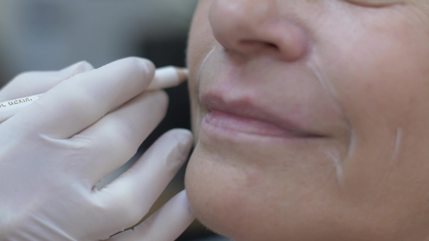 Cosmetic clinic, woman getting a Hyaluronic acid injection it is used to reduce the appearance of fine lines and wrinkles, facial folds, and to create structure, framework and volume of the lips | Shutterstock HD Video #1038761714