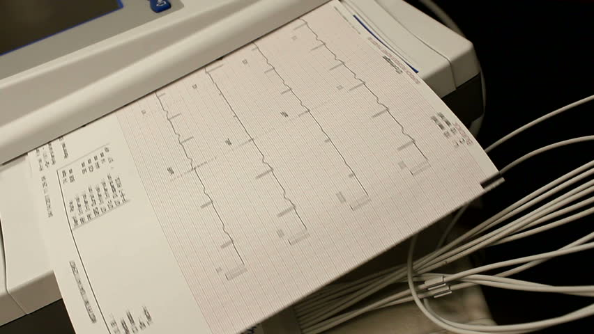 Physician reviews EKG readout. 1080p