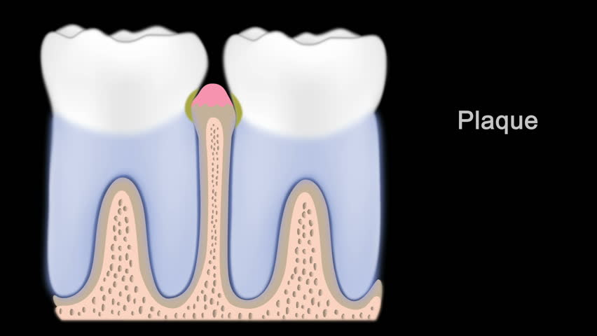 Stock Video Clip Of External Tooth Anatomy And Stages Of Periodontal