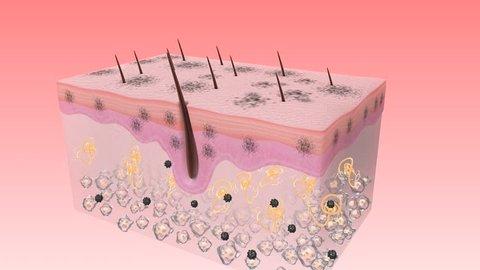 Melanoma skin detoxification