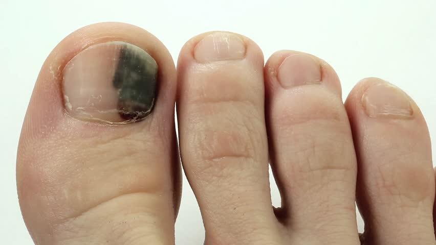 Stock video of subungual hematoma. bruise under the nail | 13464035 ...