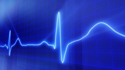 seamless loop blue background EKG electrocardiogram pulse real waveform