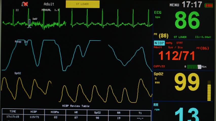 EKG monitor   Shutterstock HD Video #17082634