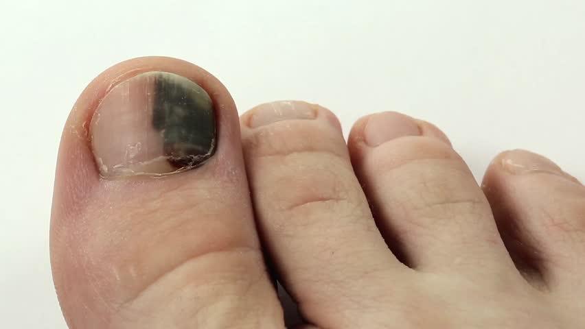 Stock video of trauma of toenail. toenails with fungal | 13464026 ...