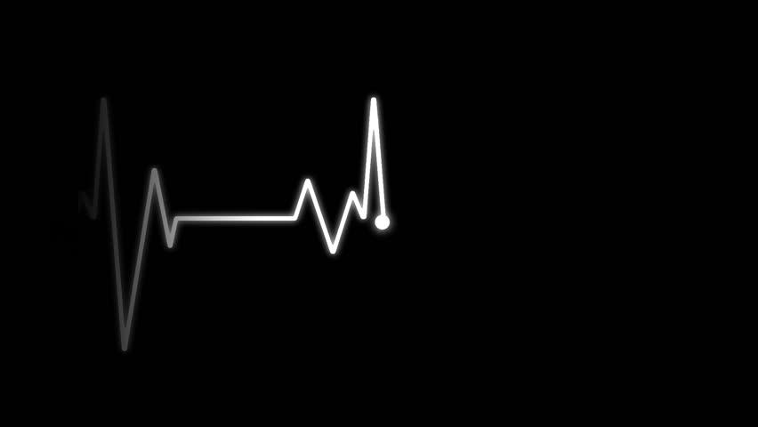 EKG Electrocardiogram - Alpha only