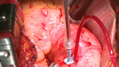 Heart beating during aneurysm surgery
