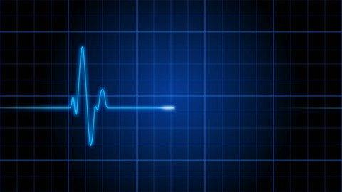 EKG 001: An electrocardiogram heart monitor pulses on a blue grid (Loop).