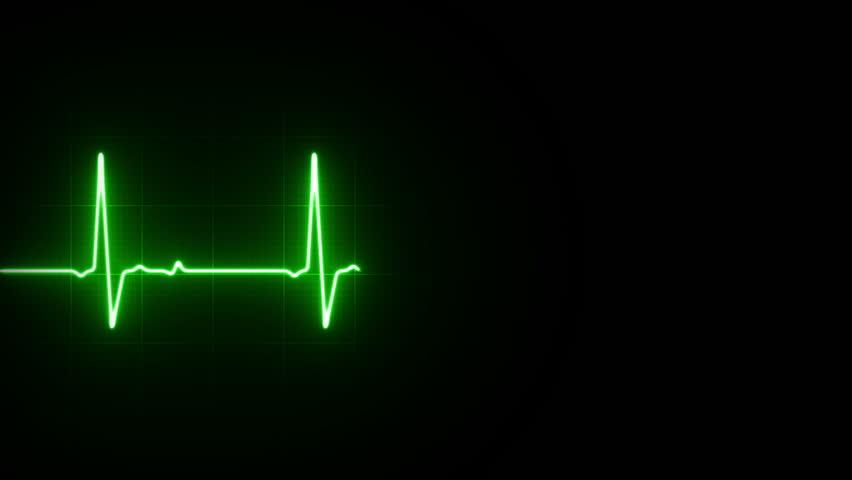 EKG Heart Line Footage Loop
