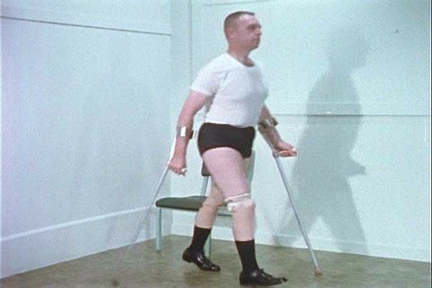 A double leg amputee patient walks using his prosthetics in 1956. (1950s)