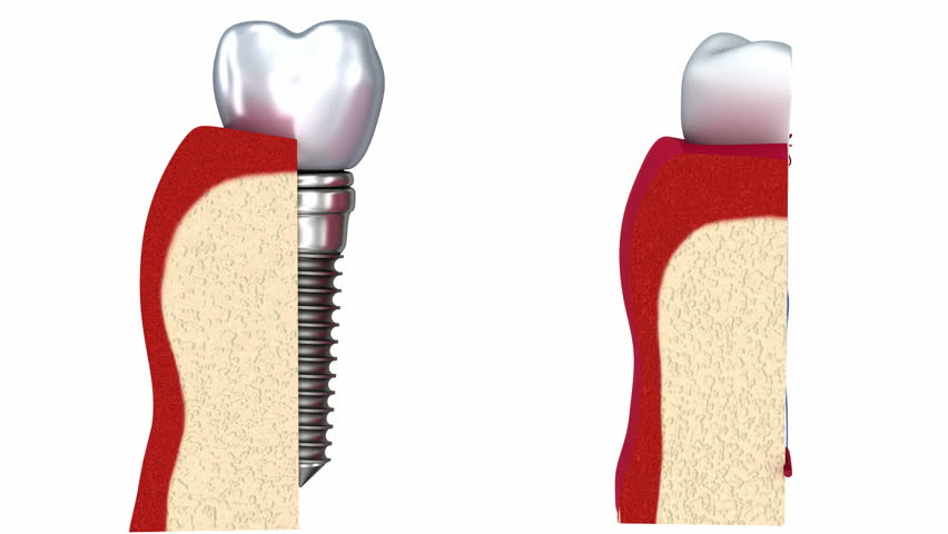 Stock Video Clip Of Anatomy Of Healthy Teeth And Dental Implant