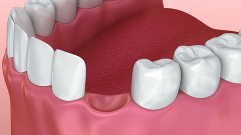 Tooth implant installation process, Medically accurate 3d animation