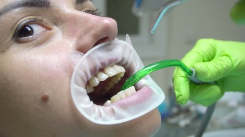 Young woman with an expander in mouth at the dental clinic. Cleaning teeth with water. Modern dental office. Dentist using saliva ejector or dental pump to evacuate saliva. Shot in 4k