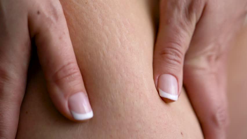 Female hip stretch marks on the skin
