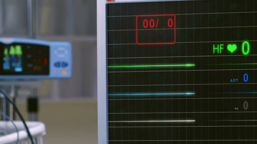 Cinemagraph of pulse checking E.C.G Monitor. Monitor that shows a lack of palpitations.