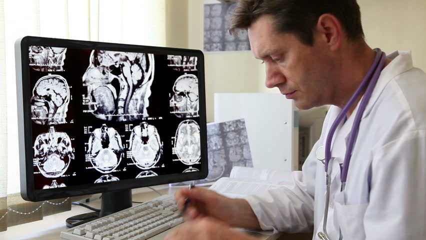 Doctor in Hospital looking at CT scan | Shutterstock HD Video #3056740