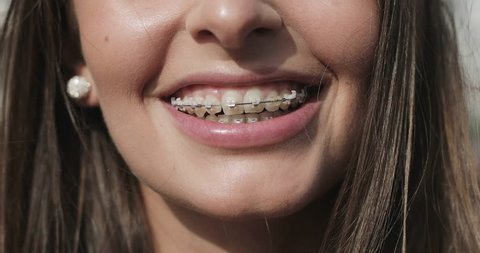 Close up young girl mouth with braces on teeth. Brunette woman looking at the camera laughing and smiling. 4K.