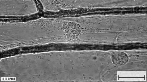 Cytoplasmic streaming (movement of organelles) in onion bulb scale epidermis cells