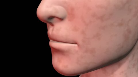 Age spots vanish from skin.Face rotates. 3d animation