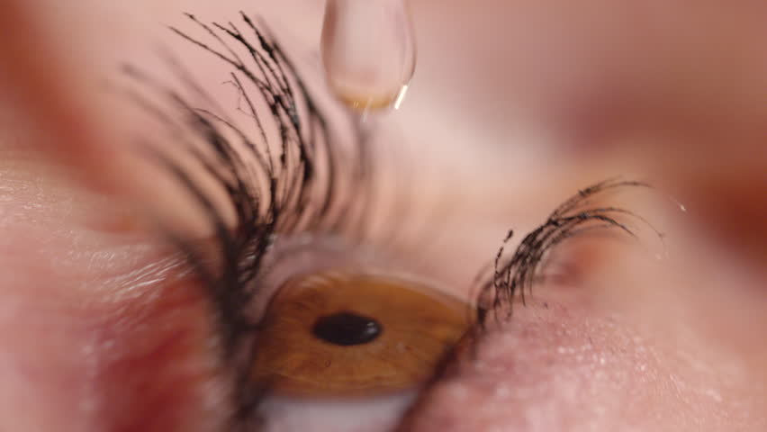 SLOW MOTION CLOSE UP: Brown eye flinches and blinks after large drop makes contact with irritated cornea. Detailed side view of woman applying drops to soothe dried up eye. Amber blinks.