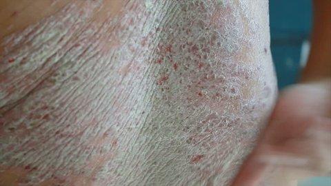 4K Close up shot hands of man scratching skin rash Dermatitis psoriasis patient itchy scratch wound