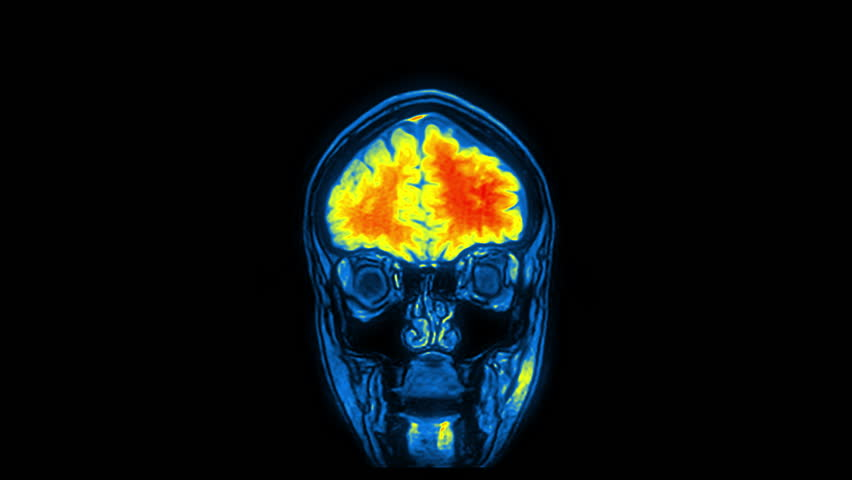 Computed medical tomography MRI upscaled scan of healthy young female head. Front view. Discrete slices. Red, yellow, blue on black background. (av44004c)