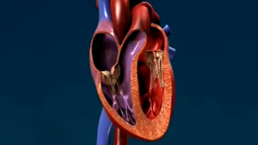 Heart attack: coronary arteries are highlighted, zoom in with details of cholesterol plaque and heart stops beating as artery is blocked