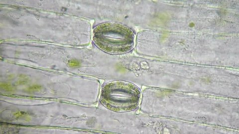 Plant cells, chloroplasts and stoma under microscope, magnification 400X